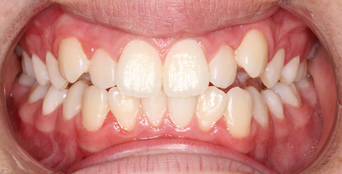 Crowded and misaligned teeth, with anterior crossbites before Orthodontic treatment